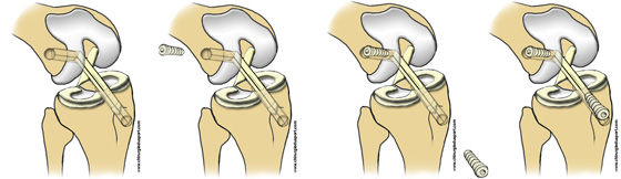Traitements - GENOU - Ligament - Opération du ligament ...